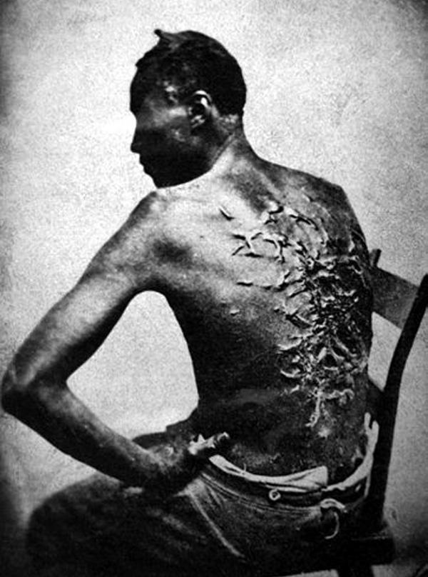 Cicatrices_de_flagellation